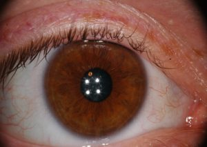 Iris showing signs of Hypoglycaemia and Adrenal lesions